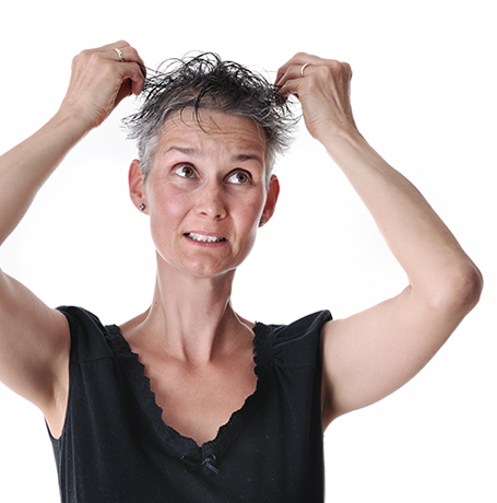 woman with androgenic alopecia