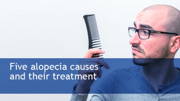 Five-alopecia-causes-and-their-treatment