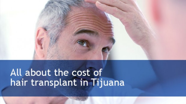 all-about-the-cost-of-hair-transplant-in-tijuana